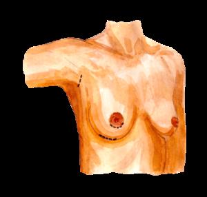 Kaip vyksta krūtų didinimas implantais