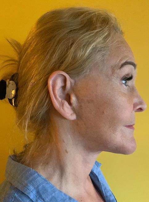 Po - nosies plastinė operacija