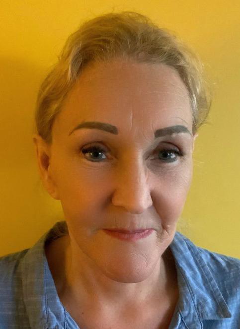 Po nosies plastinės operacijos