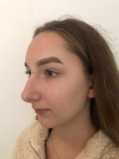 Prieš - nosies plastinė operacija