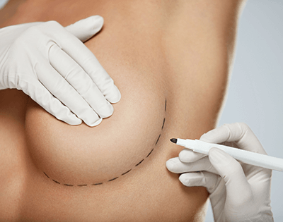 Krūtų plastika